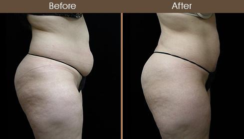 Lipo Surgery Before & After Side View