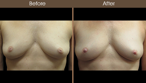 Nipple Correction Before And After