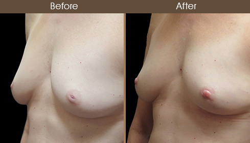 Nipple Correction Results