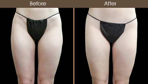 Thigh Liposuction Results