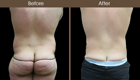 Abdominal Liposuction Before And After Back Image