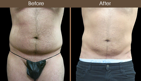 Abdominal Liposuction Before And After Front Image
