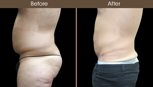 Abdominal Liposuction Before And After Left Side Image