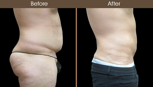 Abdominal Liposuction Before And After Right Side Image