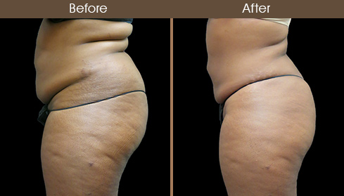 Abdominal Lipo Before And After Left Side Image