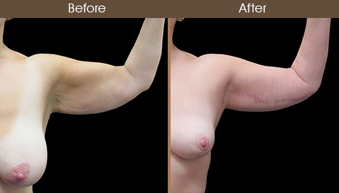 Before And After Arm Lift Front Image