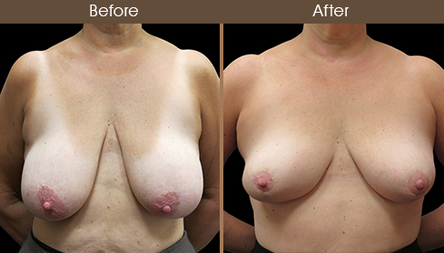 Before And After Breast Reduction Front Image