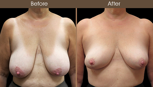 Before And After Breast Reduction Front View