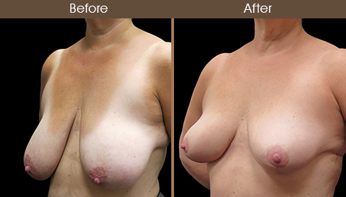 Before And After Breast Reduction Left Quarter Image