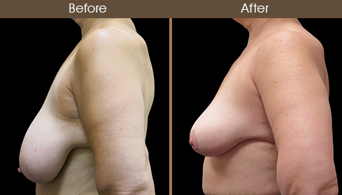 Before And After Breast Reduction Left Side View