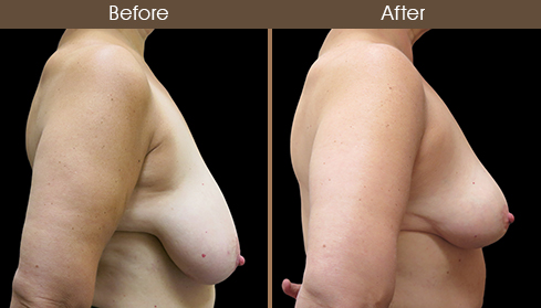 Before And After Breast Right Side View