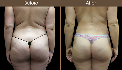 Before And After Liposuction Back View