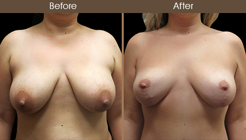 Before And After Breast Lift Front View
