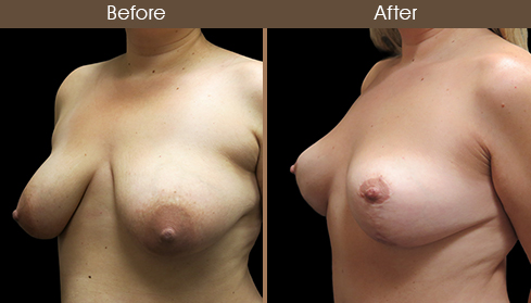 Before And After Breast Lift Left Quarter Image
