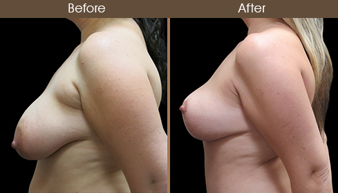 Before And After Breast Lift Left Side View