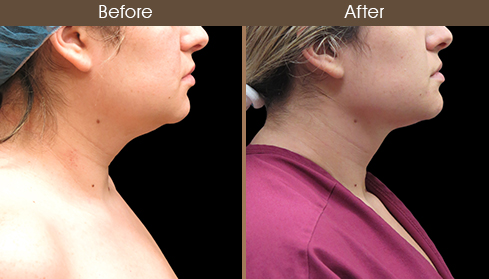 Before And After Neck Liposuction Right Side View