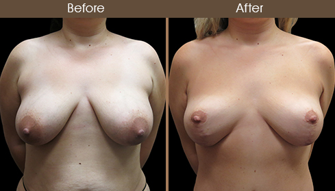 Before And After Mommy Makeover Surgery Front Image