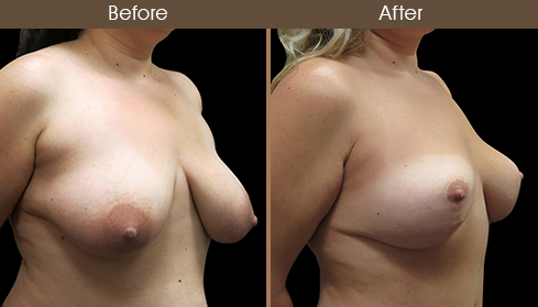 Before And After Mommy Makeover Surgery Right Quarter Image