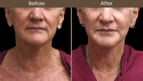 Before And After Neck Lift Front View