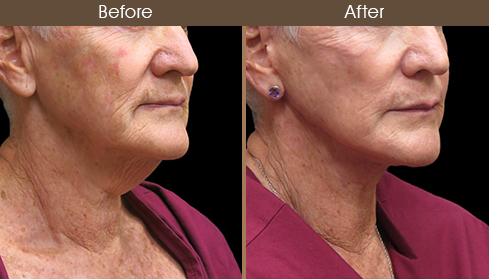 Before And After Neck Lift Right Quarter View