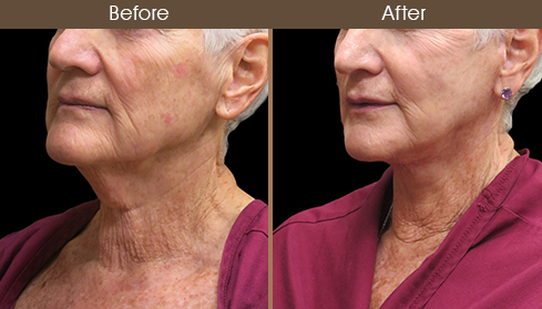 Before And After Neck Lift Left Quarter View