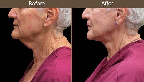 Before And After Neck Lift Left Side View