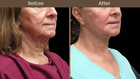Before And After Neck Lift Right Quarter Image