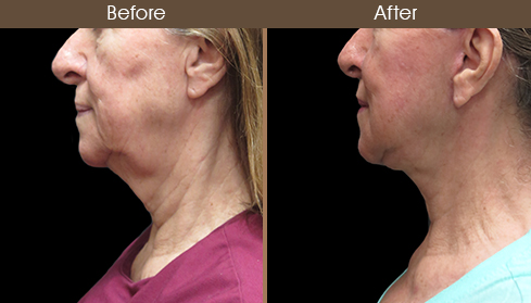 Before And After Neck Lift Left Side Image