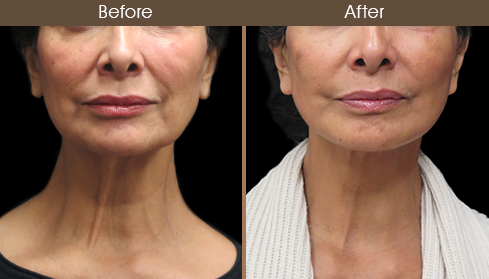 Before And After Neck Lift Surgery Front Image