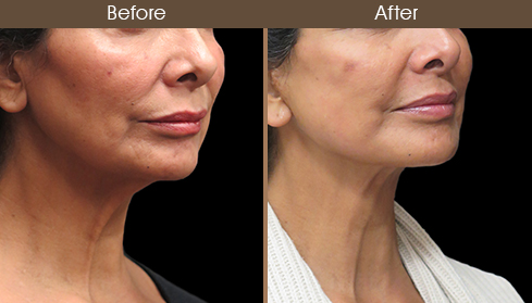 Before And After Neck Lift Surgery Right Quarter Image