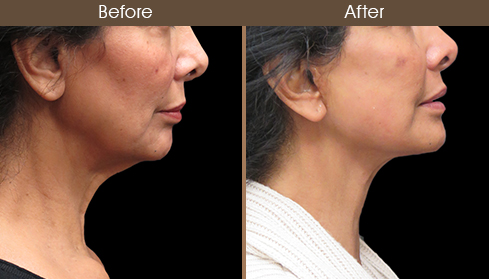 Before And After Neck Lift Surgery Right Side Image