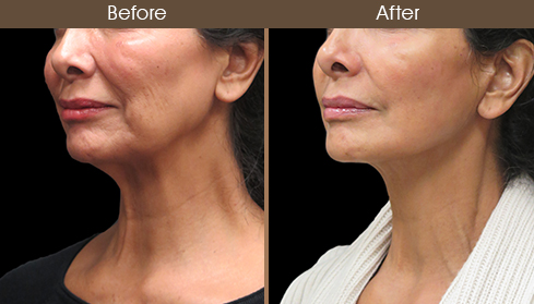 Before And After Neck Lift Surgery Left Quarter Image