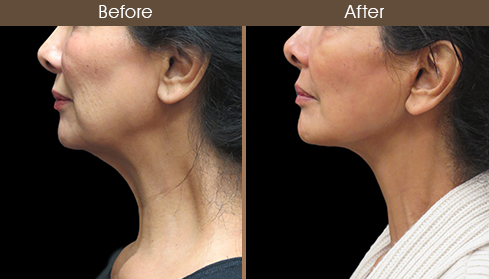 Before And After Neck Lift Surgery Left Side Image