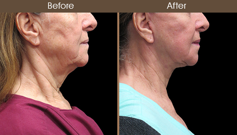 Before And After Facelift Right Side Image