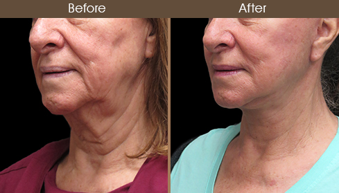 Before And After Facelift Left Quarter Image