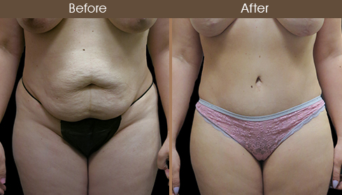 Before And After Tummy Tuck Front View