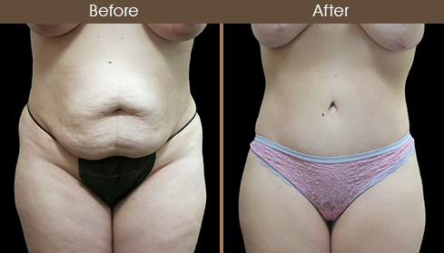 Before And After Tummy Tuck Front Image