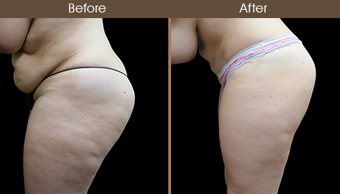 Before And After Tummy Tuck Left Side View