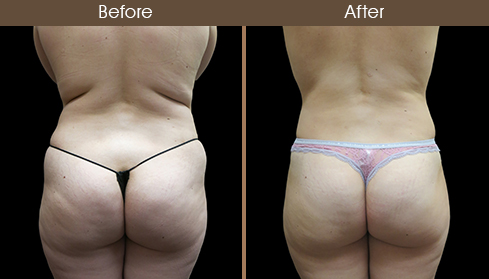 Before And After Tummy Tuck Back Image