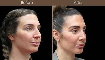 Before & After Nose Reshaping In New York City