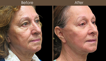 Before And After Nose Reshaping In New York