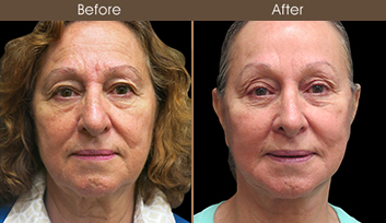 Before & After Nose Reshaping In New York