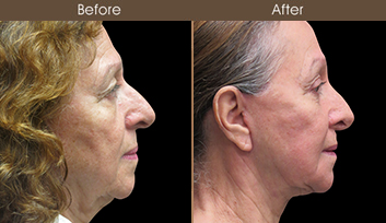 Before And After Nose Reshaping In New York City