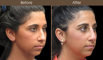 Before & After Rhinoplasty Treatment In New York