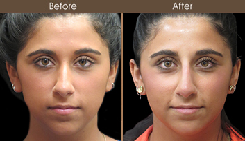 Before And After Rhinoplasty Treatment In New York City