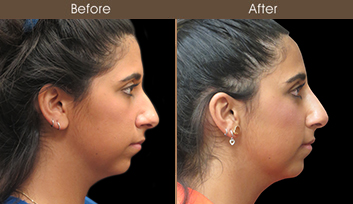 Before & After Rhinoplasty Treatment In New York City