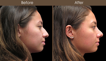 Before & After Rhinoplasty In New York City