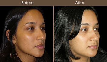 Before And After Rhinoplasty Treatment In NYC
