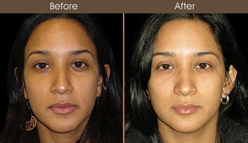 Before & After Rhinoplasty Treatment In NYC