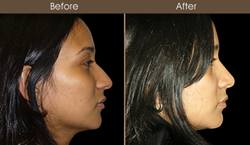 Before And After Rhinoplasty Treatment In New York